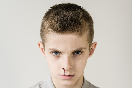 glowering: Head shot of male child with short brown hair and trickle of blood streaming from his nose wearing grey shirt Stock Photo
