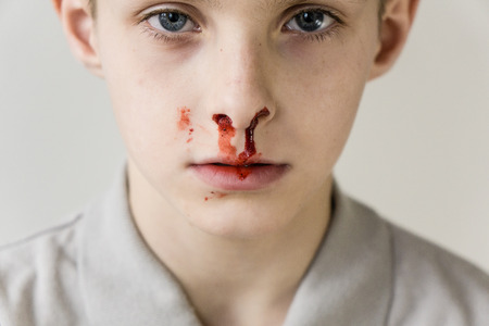 haemorrhage: Close Up Head and Shoulders Portrait of Young Boy with Bloody Nose Staring Blankly at Camera in Studio with Light Colored Background Stock Photo
