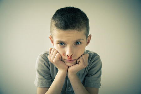 sombre: Waist Up Portrait of Young Boy with Bloody Nose Resting Head on Hands and Staring at Camera in Studio with Light Colored Background and Vignette Effect