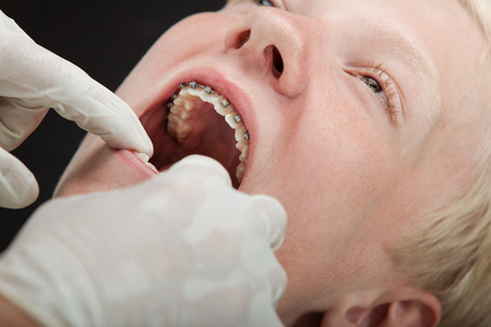 gloved: Dentist checking a young blond boys orthodontic braces with gloved hands, close up view Stock Photo