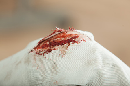 Close up view of the bloody gashed knee of a young man with ripped pants following an accident, fall or shrapnel injury in a medical and healthcare concept