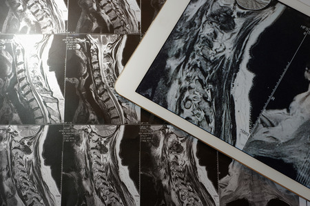 MRI Pictures of spinal column with magnification on overlaying tablet