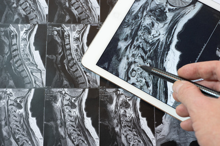 mri: MRI Pictures of spinal column , Doctor pointing to the problem