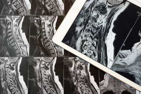 spinal column: MRI Pictures of spinal column with magnification on overlaying tablet