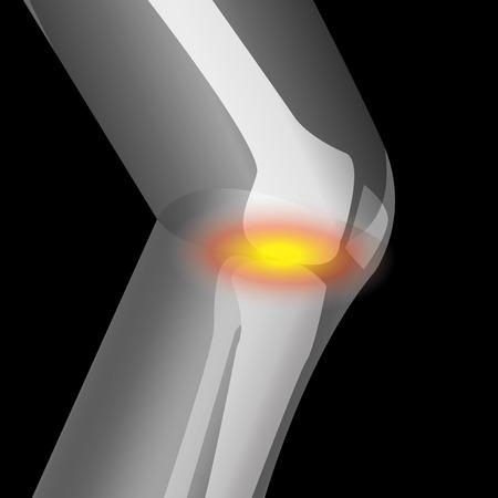 artritis in de knie, pijn van de knie, die lijden aan knie, vector Stock Illustratie