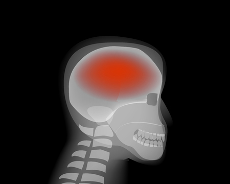 Headache,stroke, Brain Diseases,Alzheimer vector