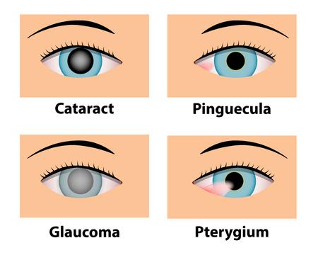 백내장, Pinguecula, 녹내장 및 Pterygium, 벡터 안과 치료 일러스트