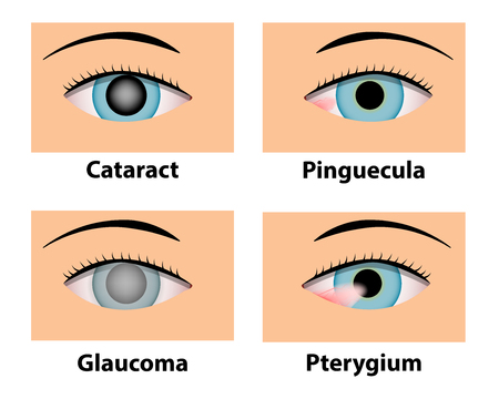 Cataract, Pinguecula, Glaucoma and Pterygium, vector eye care