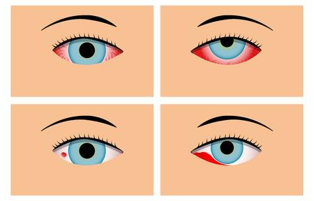 Conjunctivitis and Red Bloodshot Eyes, vector design Illustration