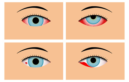 Conjunctivitis and Red Bloodshot Eyes, vector design Illustration