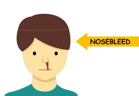 Isolated Nosebleed on man in Vector cartoon art design