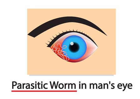 Closeup Parasitic Worms in humans eye, vector art design 向量圖像