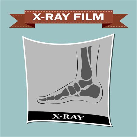 meniscus: Foot x-ray. Vector