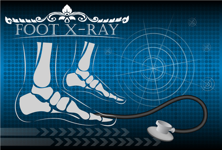talus: Foot x-ray