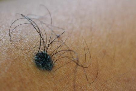 Macro shot of birthmark with hairs on man skin