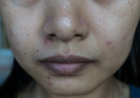 Yํoung woman with problem skin from acne, Nose, cheek, chin. Stock Photo