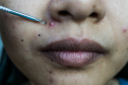 Young woman with problem skin from acne,Pressed Acne. Stock Photo - 89519431