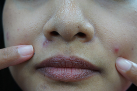 Young woman with problem skin from acne, Nose, cheek, chin.