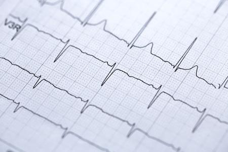 electrocardiogram: electrocardiogram