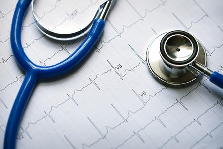 stethoscope with electrocardiogram Stok Fotoğraf - 62834978