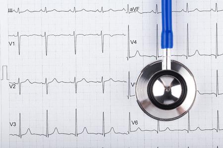 electrocardiograma: stethoscope with electrocardiogram