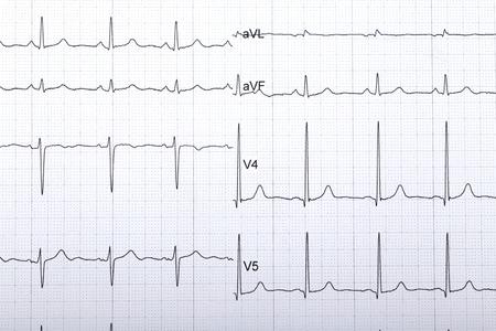 electrocardiograma: electrocardiogram