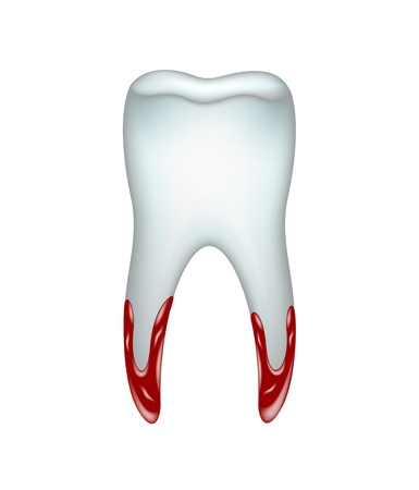 pulled: Pulled tooth with blood