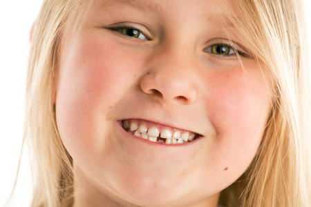 the little girl with missing teeth  photo