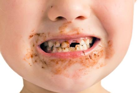 dientes sucios: el niño con una boca sucia y el diente que falta Foto de archivo