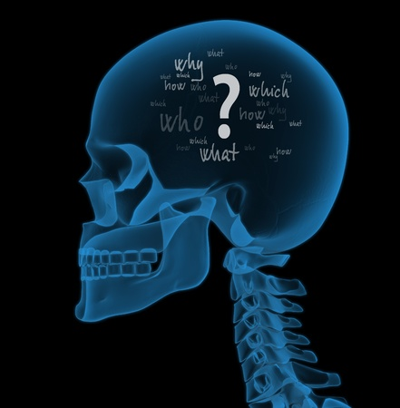 how: X-ray head full of questions (3D render) Stock Photo