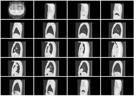 ct scan step set of body lung sagittal view 版權商用圖片