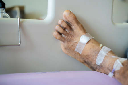 Diabetic patients were cut off the little finger. Recuperate at the hospital trying Banque d'images