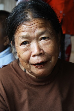 Karen Woman with lips and teeth covered with brown colour in tribal village in Chiang Mai, Thailand - 31.07.2011
