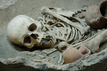 huesos humanos: Antiguo cráneo humano y huesos