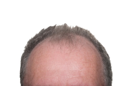 hairline: Balding Head Showing Male Pattern Baldness on White Background