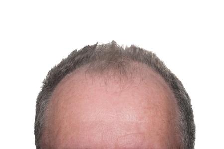 calvitie: Chef Balding Affichage calvitie chez les hommes sur fond blanc