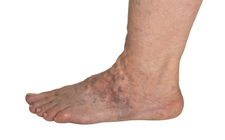 spiders: Varicose Veins On A Female Foot Stock Photo