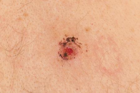 biopsia: La piel despu�s de quitar un lunar para las pruebas de biopsia Foto de archivo