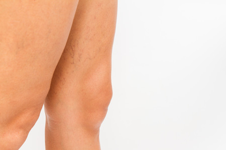 Varicose veins on a leg white background.