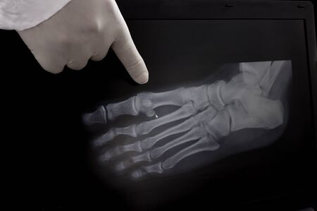 X-ray of the foot. The doctor points a finger at the growths on the bone.