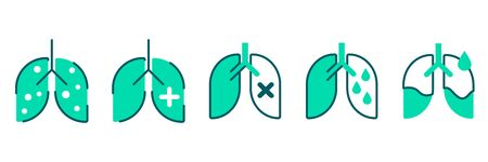 Pneumonia, human lung inflammation, coronavirus progression flat illustration