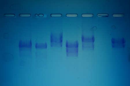 forensic science: Forensic Science DNA Fingerprint