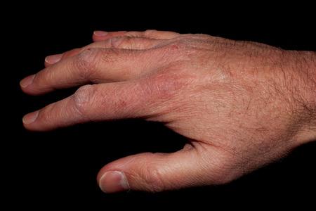 sarpullido: Mano con la piel seca