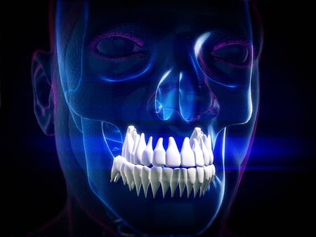 Abstract Skull,dental X-Rays.3d rendering
