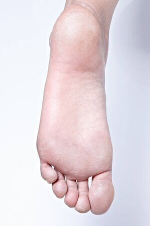 A dry, rough sole. dead skin cell and dry foot.