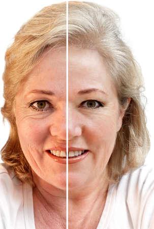 rejuvenating: Fifty-donna qualcosa considerando la rimozione delle rughe e ringiovanimento cutaneo