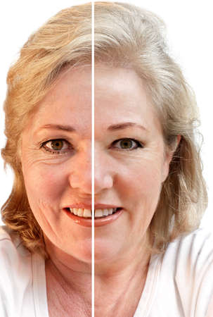 face lift: Fifty-something woman considering wrinkle-removal and skin rejuvenation