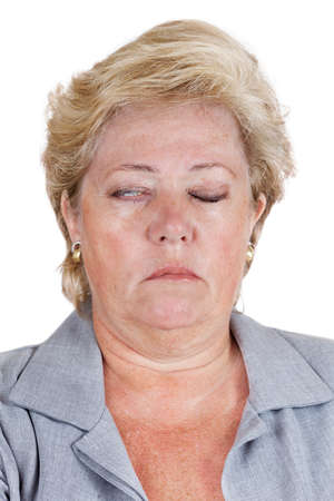 lopsided: Mature woman with Bells Palsy unable to fully close her right eye Stock Photo
