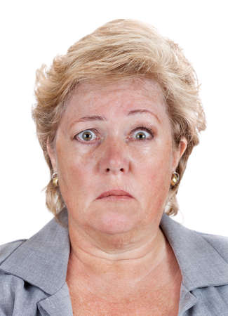 lopsided: Mature woman with Bells Palsy unable to move the right half of her face