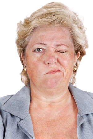unable: Mature woman with Bells Palsy unable to scrunch up her right eye